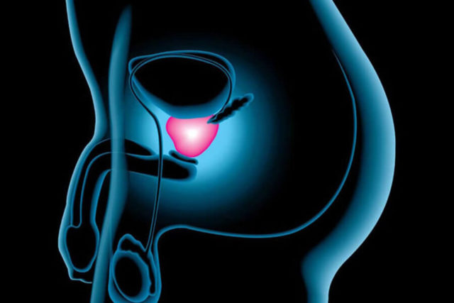 Tumor Cancer de Prostata